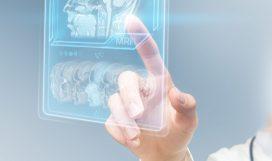 Doctor using virtual interface displaying brain scan